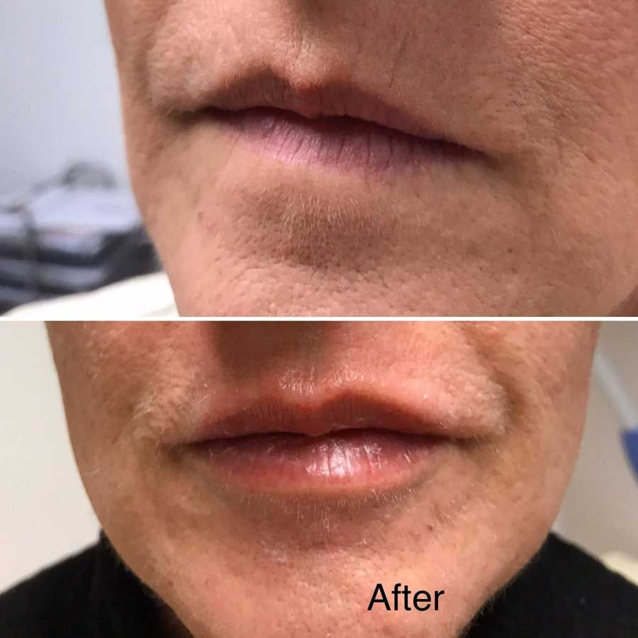 Lips & smokers lines filler