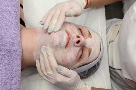new-facial-peel-section